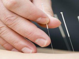 Akupunktur görseli.