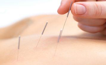 Akupunktur ile kişiler kilo vermeye hazır hale getirilmekle birlikte migren tedavisine kadar kullanılır.